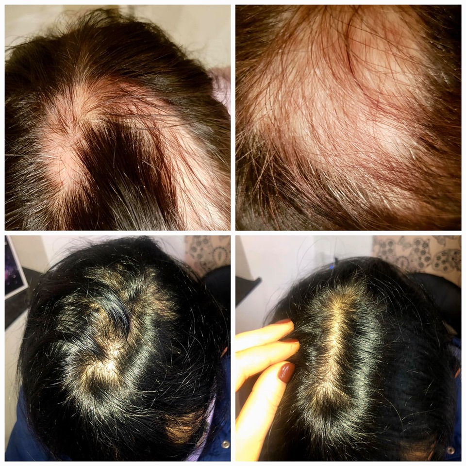 Alopécie areata avant et après traitement